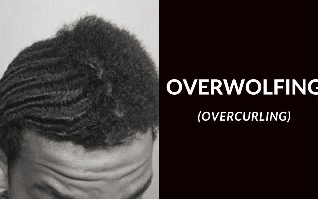 Les waves et l'overwolfing (overcurling)